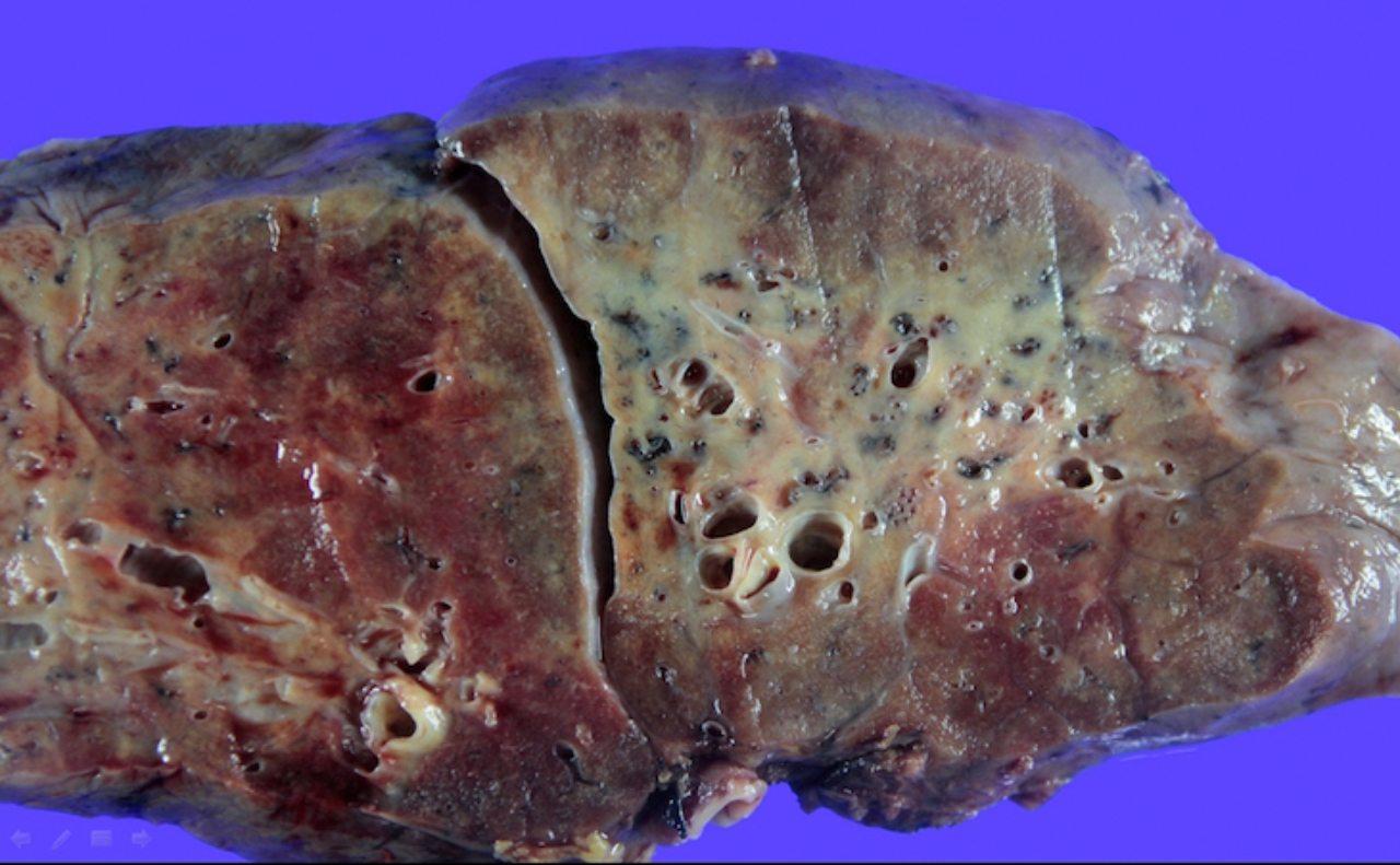 Daños del Covid-19 a los pulmones.