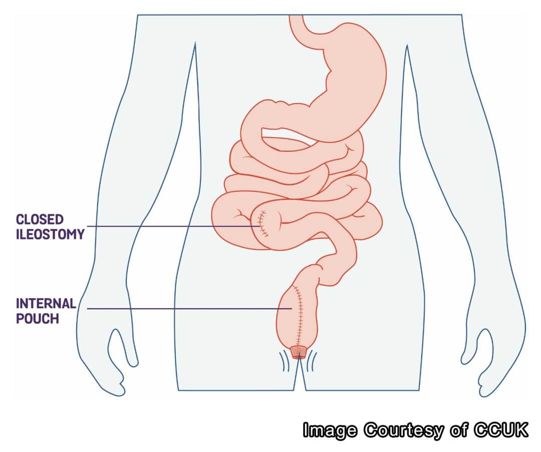 pouch, j pouch, surgery, ulcerative, colitis
