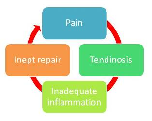 elbow tendinitis diagram