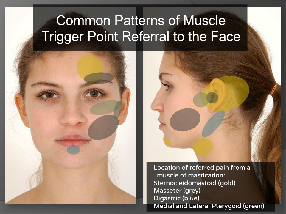 TMD symptoms include referred face pain