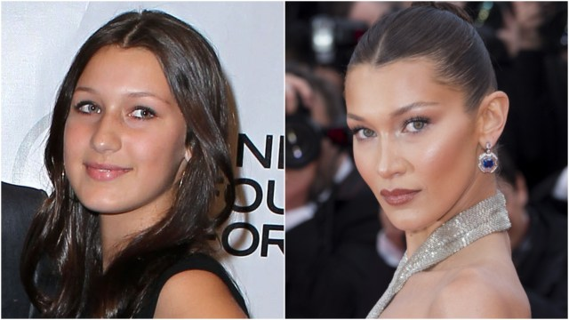 Bella Hadid nose job 2010 compared to now