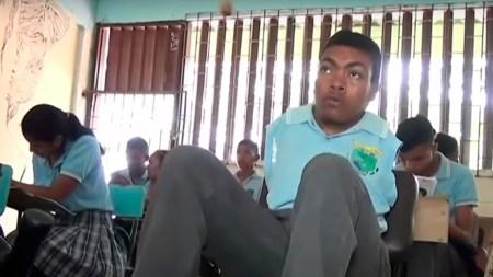 joven estudiante brazos