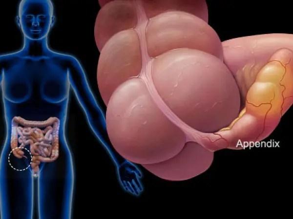 appendicite postoperatoria a dieta molle