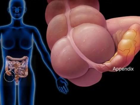 appendicectomia laparoscopica, appendice, appendicite acuta, appendicite