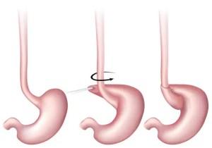 reflusso gastroesofageo, Nissen, intervento di Nissen, plastica antireflusso