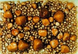 colelitiasi, clcoli alla colecisti, calcoli alla cistifellea
