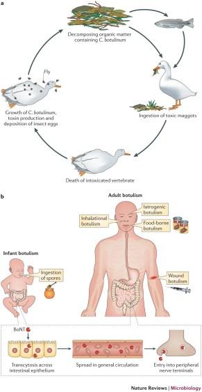 tossina botulinica, botox, ragade anale, terapia della ragade anale, tossina botulinica nel trattamento della ragade anale