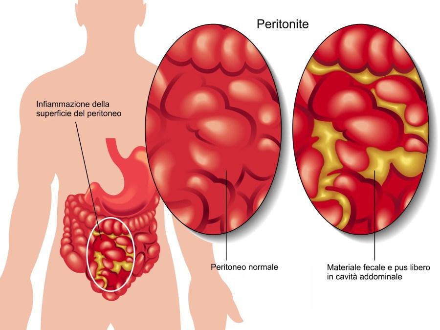 diverticolite quando operare, diverticolite, peritonite, pus, perforazione, diverticolo perforato