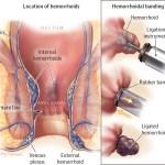 legatura elastica delle emorroidi
