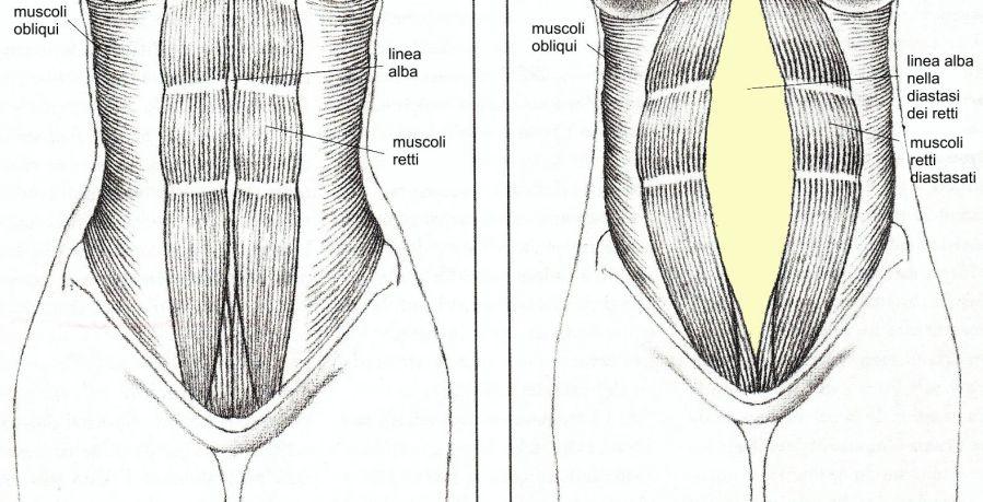 diastasi dei retti, diastasi, ernia addominale, retto addominale, diastasi dei muscoli retti dell'addome
