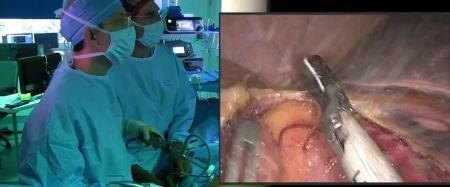 cancro del colon, tumore del colon, chirurgia laparoscopica