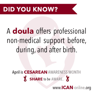 Doulas offer professional Cesarean Support
