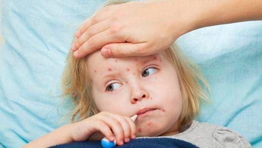 Colorado Measles