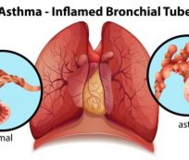 Asthma Is A Chronic Inflammatory Condition Of The Airways This Inflammation Causes The Airways To Narrow And Fill With Inflammatory Mucus Which Leads To