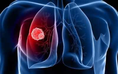 Brigatinib becomes potential new first-line option for ALK-positive non-small lung cancer