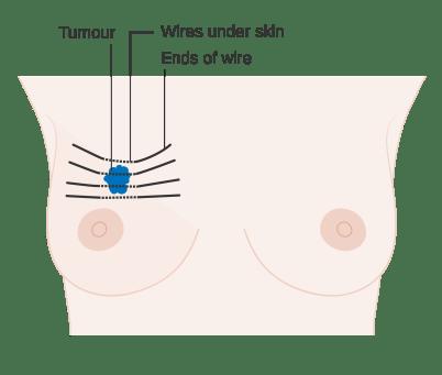 cancro-seno