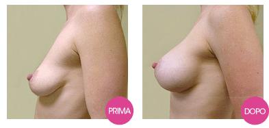 breastfast foto prima e dopo
