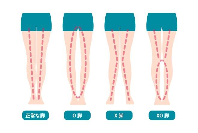 藤沢パーソナルトレーニングジム 足の歪み 3タイプ