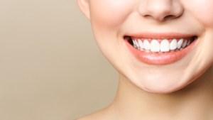 健康的な歯の笑み