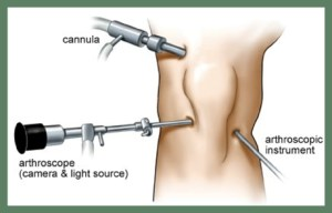 Arthroscope1