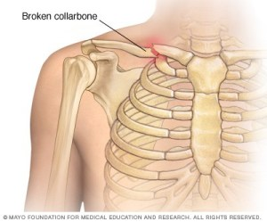 Fractured-clavicle1