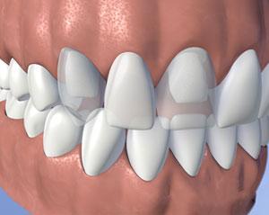 An example of a dental fixed bridge