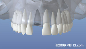 An example of the upper jaw missing a tooth with the jaw bone unhealed
