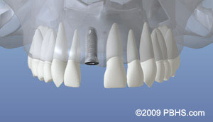 A representation of the healed jaw bone after placement of the dental implant