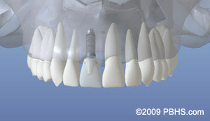An example of a fully restored tooth using a dental implant