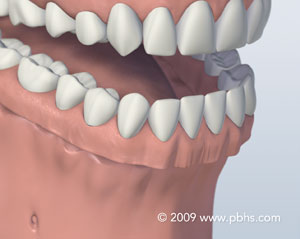 A representation of a full denture for the entire lower jaw