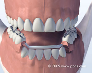 A depiction of a sturdy partial denture cast in metal and plastic