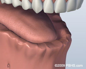 A digital representation of a the lower jaw missing all of its teeth