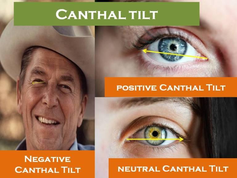 Canthal Tilt |Positive and Negative Tilt Ultimate Guide 2020