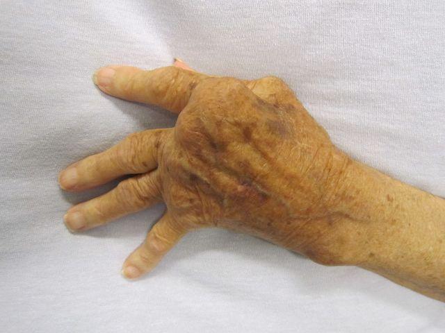 ¿Cómo tratar la artritis?
