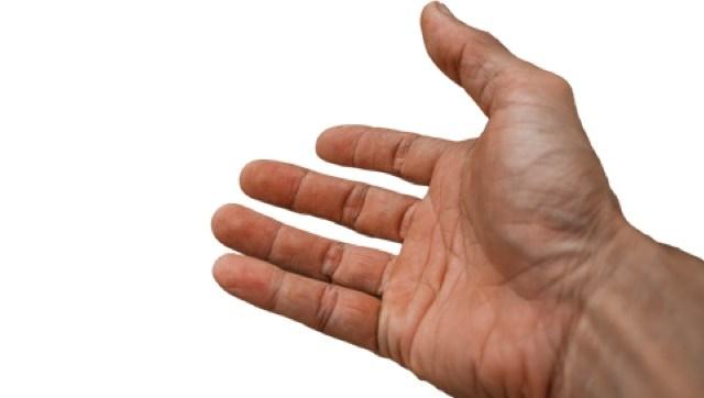 Seis afecciones que pueden presentar tus manos: ¿qué dicen de tu salud?