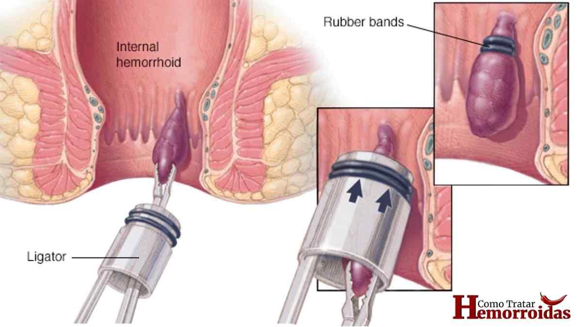 hemorroida-interna-sintomas-tratamentos