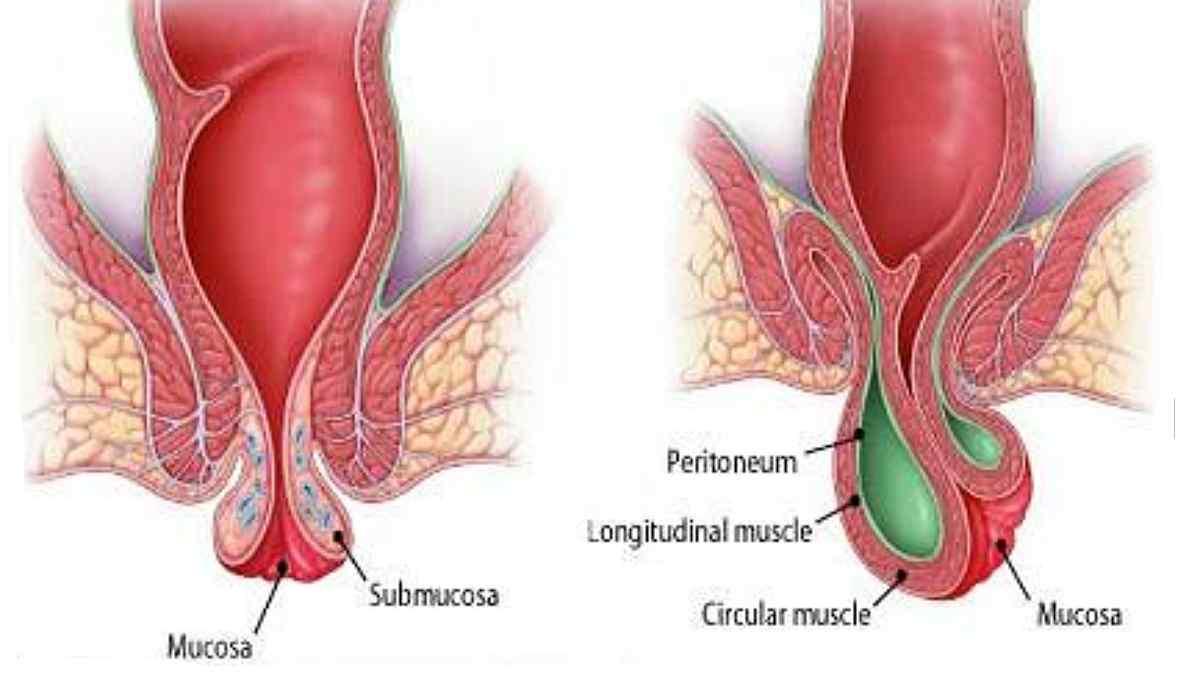 Hemorroidas Trombosadas: Causas, Sintomas e Tratamentos