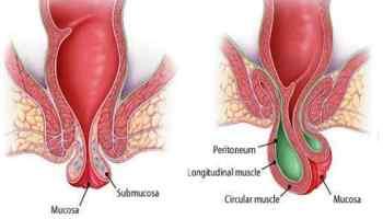 Hemorroida trombosada: Causas, sintomas e tratamentos