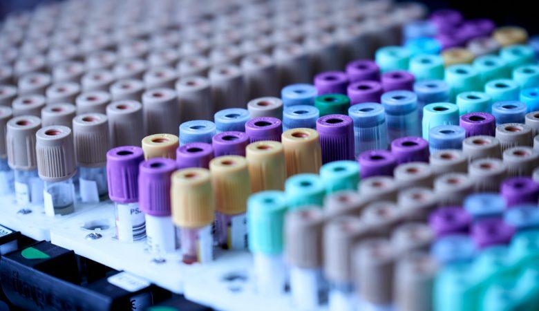 Metabolic Blood Panel