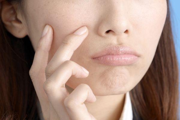 ニキビが痛いし気になる時の5つの対処法
