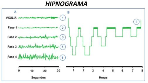 Hipnograma