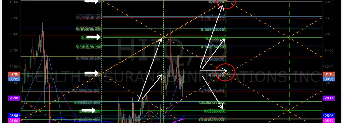 $HIIQ, daily, MACD, tradingplan, price, targets