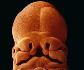 J 35 : le fœtus mesure 9 millimètres de long et le visage commence à se former