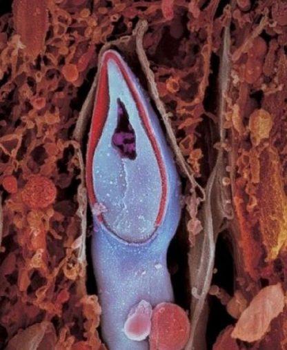 Le spermatozoide