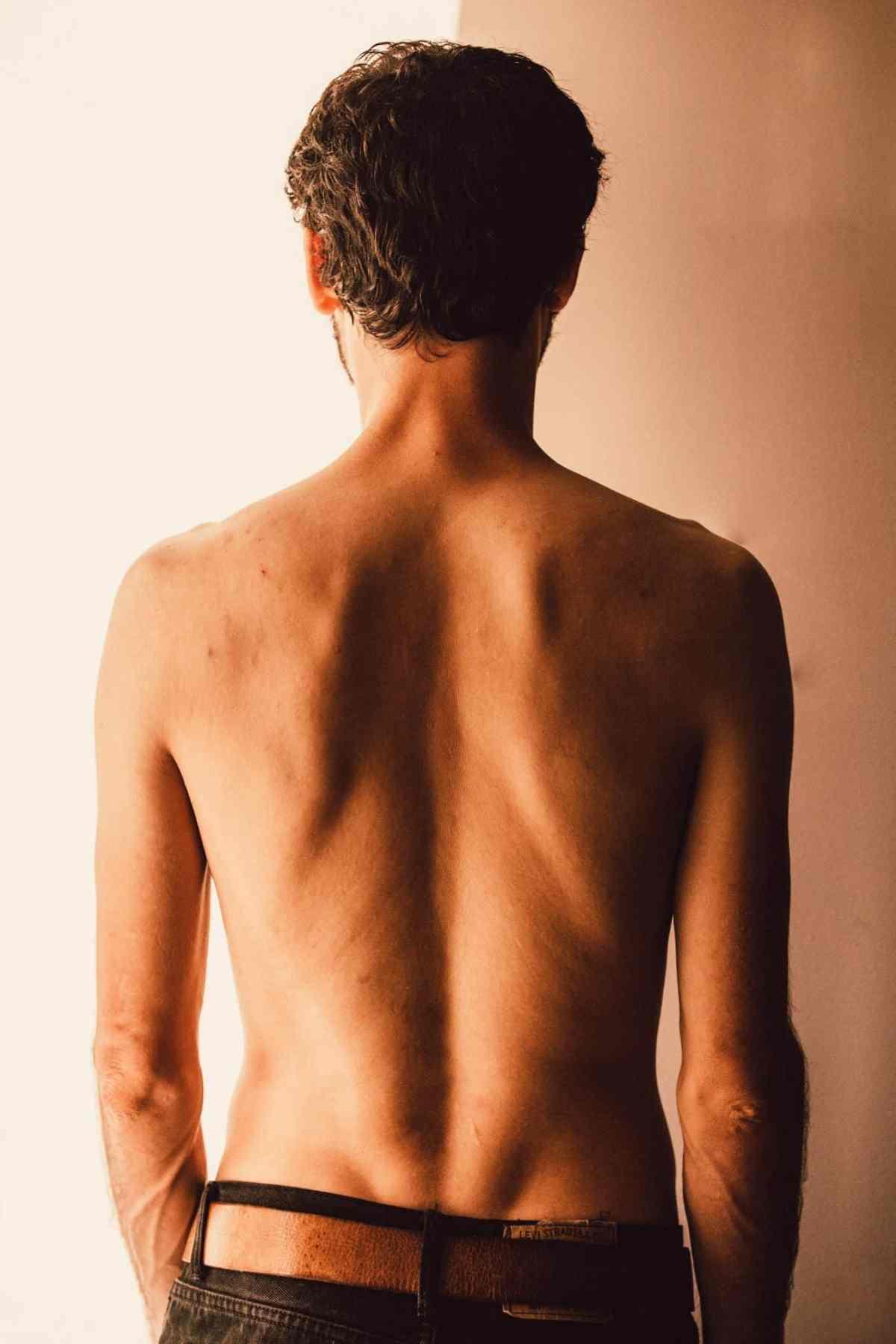 30 questions/réponses sur la hernie discale lombaire non opérée