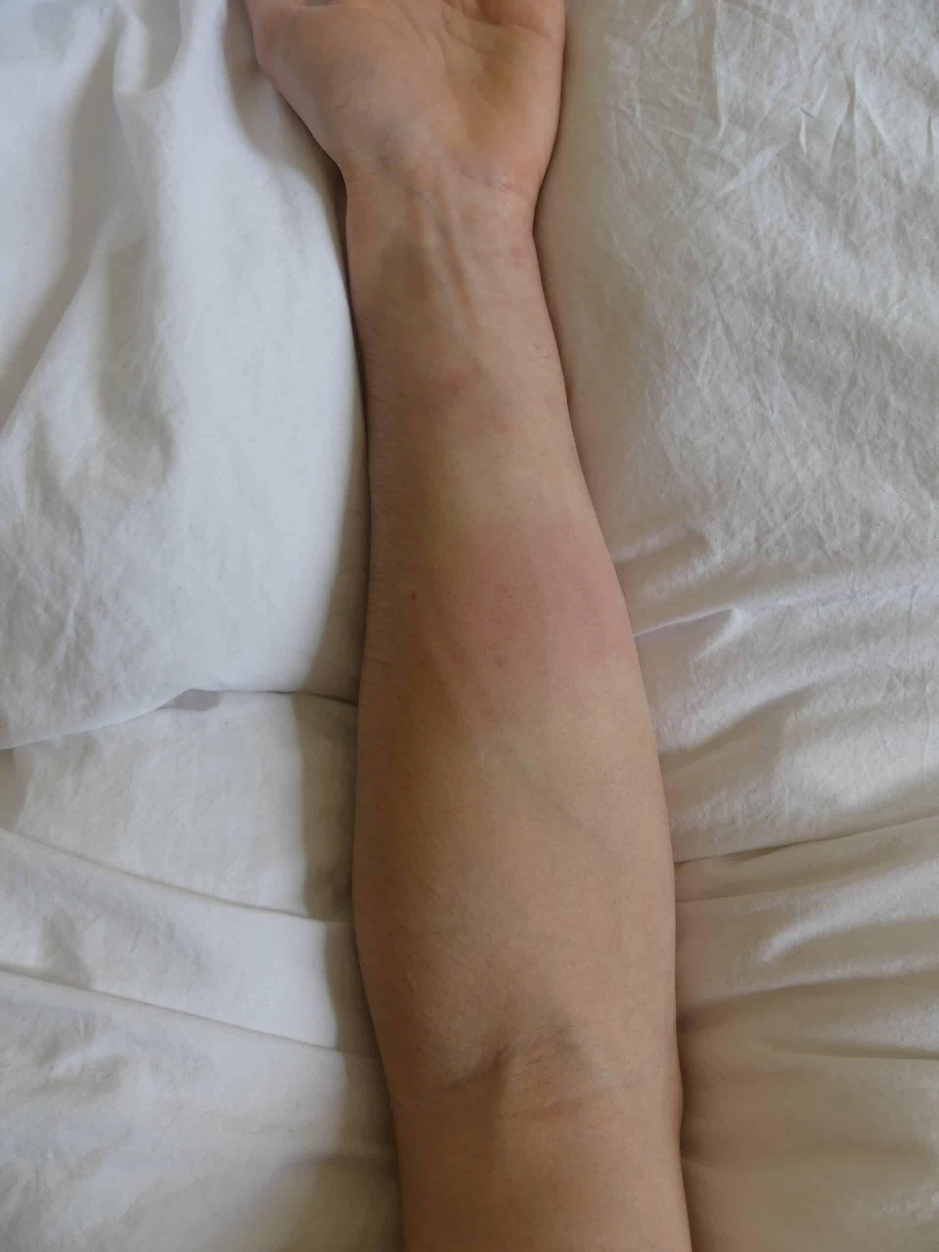 Avant-bras après avoir gratté