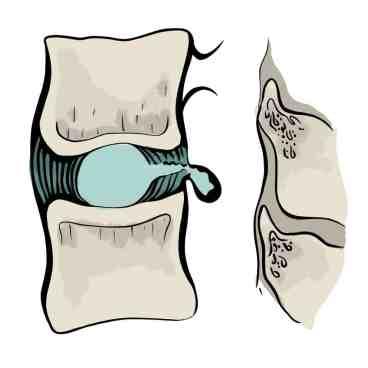 Extrusion discale vue de côté