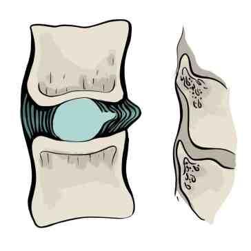 Protrusion discale vue de côté