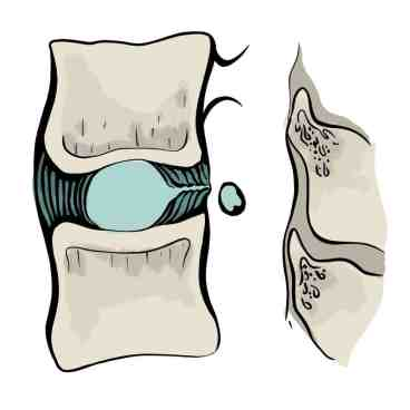 Séquestration discale ou fragment discal libre