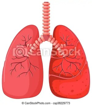 Lung diagram with pneumonia illustration